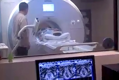 MRI scans could be a 'game-changer' in prostate cancer testing