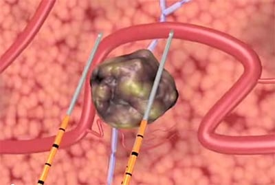 Irreversible Electroporation Focal Therapy (NanoKnife) now shown to be a safe and effective treatment in selected patients.